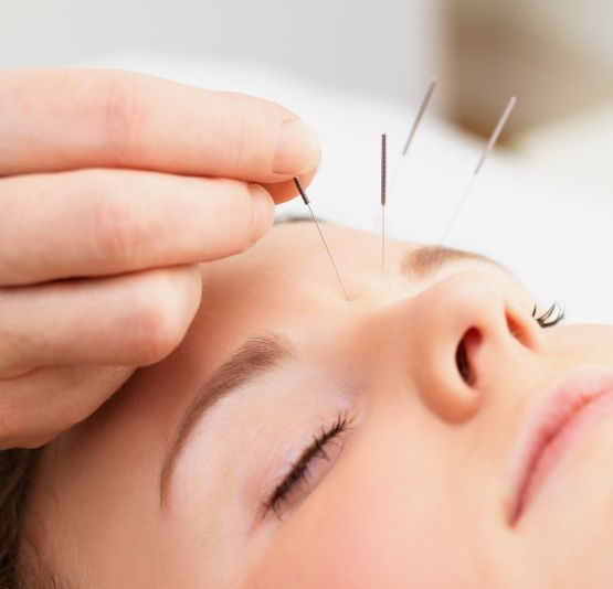 acupuncturekid